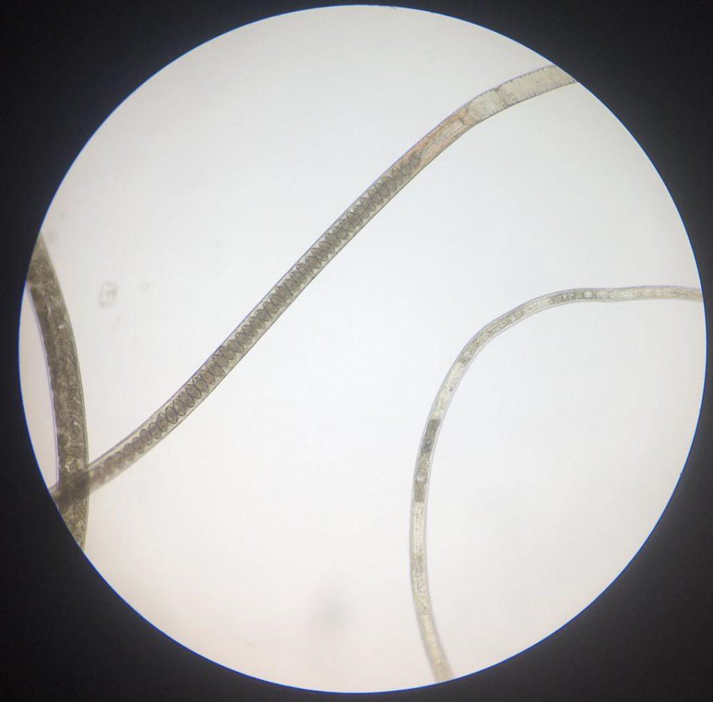 capillaria|obsignata|worm|parasite|ridgeway|research